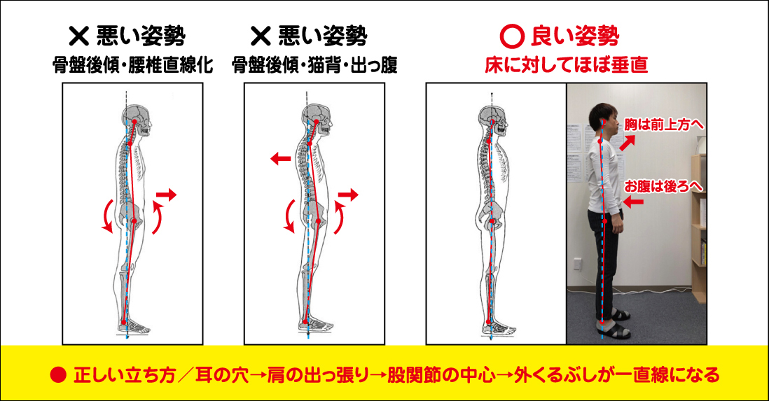 The correct way to stand without getting a herniated disc