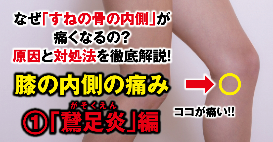 """Why does my knee hurt inside? We will thoroughly explain the cause and remedy! ① """"Pes anserine"""""""