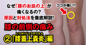 """Why does my knee hurt on the front side? We will thoroughly explain the cause and remedy! ② """"Suprapatellar pouchitis"""""""