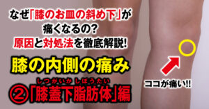"""Why does my knee hurt inside? We will thoroughly explain the cause and remedy! ② """"Underpatellar fat pad"""""""