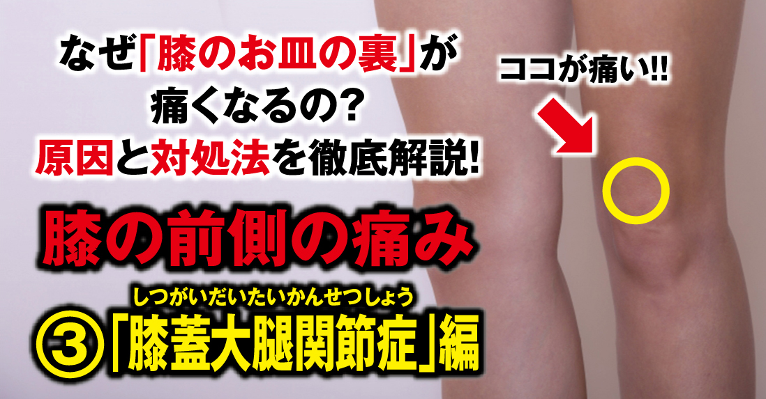 """Why does my knee hurt on the front side? We will thoroughly explain the cause and remedy! ③ """"Knee patellofemoral arthropathy"""""""